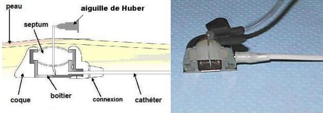 Bonnes Pratiques dutilisation dune Chambre  Cathter Implantable CCI  Intrt dune CCI