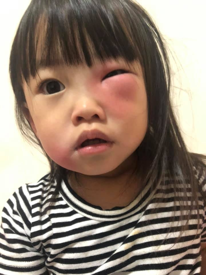2歲萌妹被蚊子偷咬「隔天腫成一條線」 其他家長曬照:我家的更慘… - 爆新聞