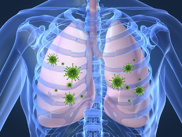 Hantavirus Pulmonary Syndrome   Israel  PDF   PPT  Case Reports ...