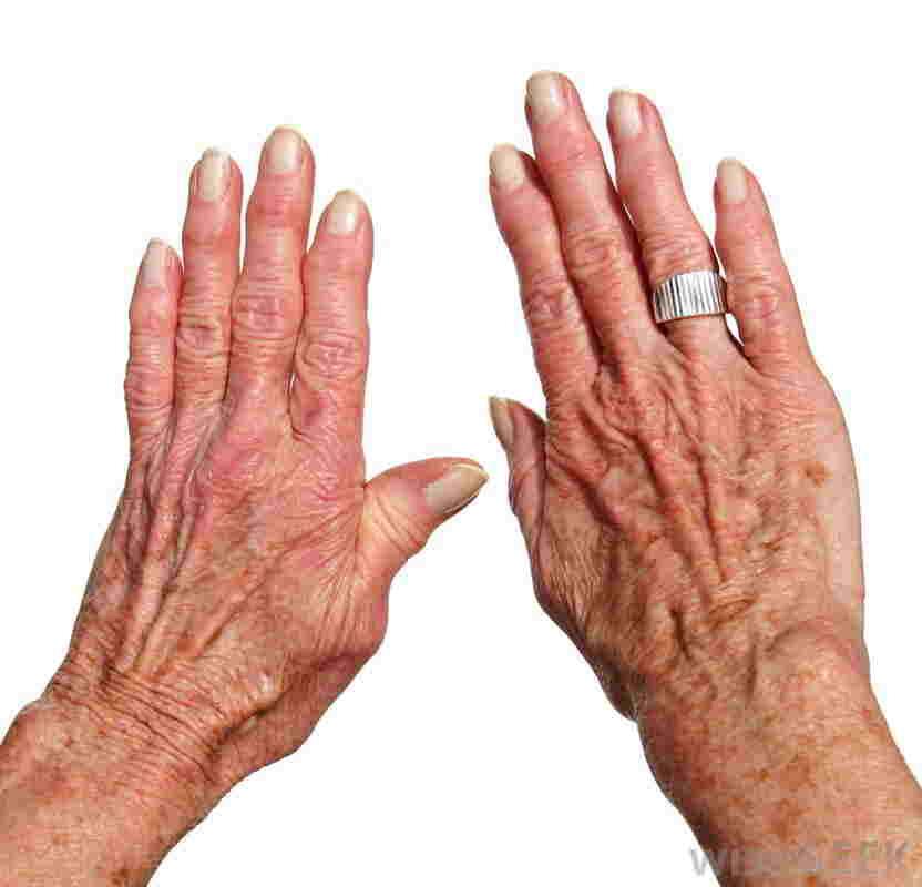 Polymyalgia rheumatica | Canada| PDF | PPT| Case Reports ...