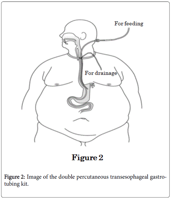 weight-loss-therapy-double-percutaneous