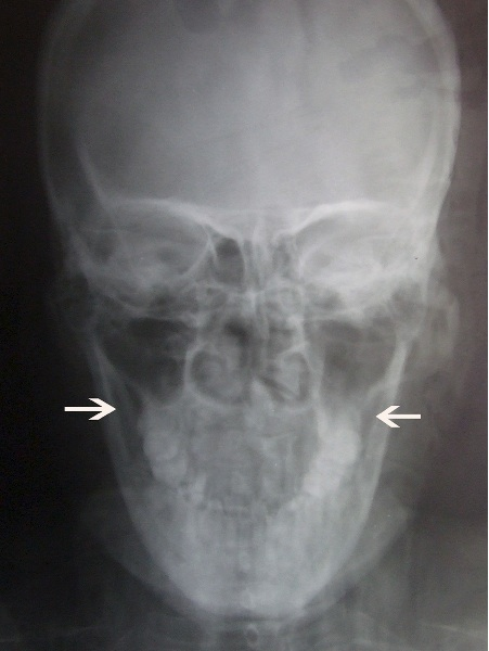 townes radiograph