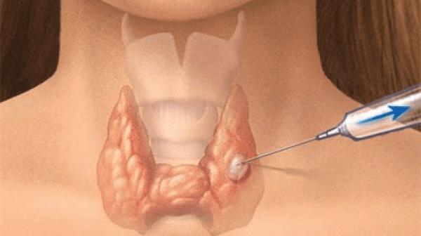 biopsia-tiroides