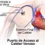 colocacion-cateter-de-puerto-cirujano-oncologo-cancun.jpg