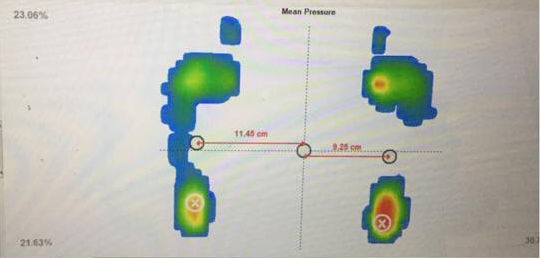 Client's before foot scan showing the edge of the right foot not touching the floor