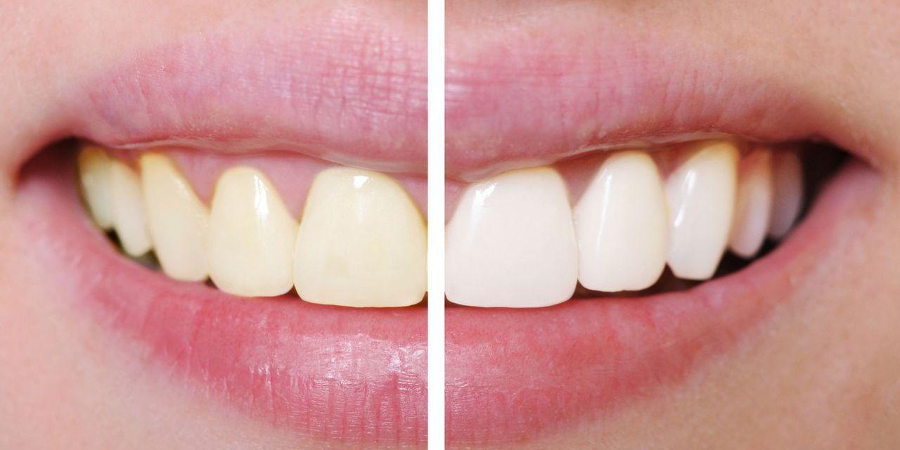 10 tips voor stralend witte tanden