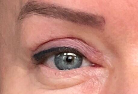 Hoe werkt een ooglidcorrectie – mijn persoonlijke ervaringen