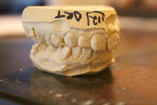 dental mold of teeth