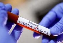 corona virus negetive
