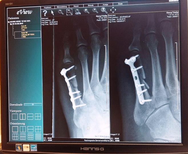 Piperacillin Tazobactam Injection for Osteomyelitis Bone Infection