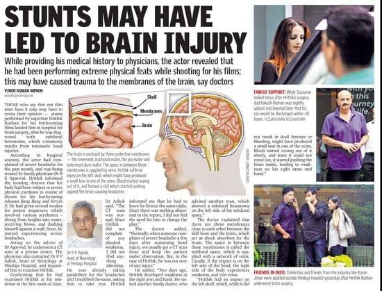 Hrithik Roshan and his Brain Surgery