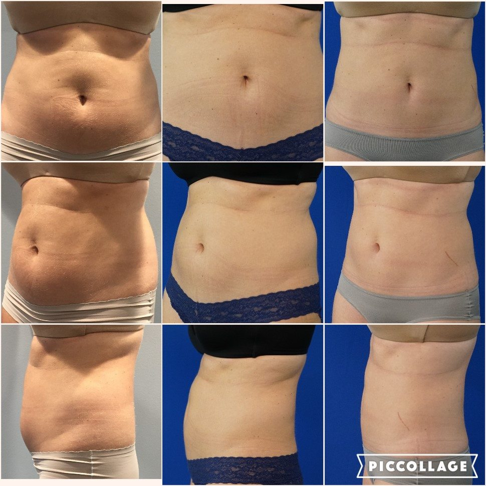 best coolsculpting dallas, best coolsculpting fort worth, plastic surgeon dallas fort worth