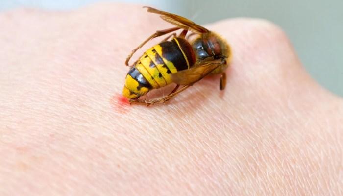 Wespensteek in hand
