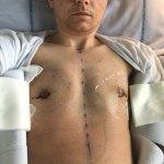Transkønnet, mastektomi - Helingsprocessen Rigshospitalet 2017