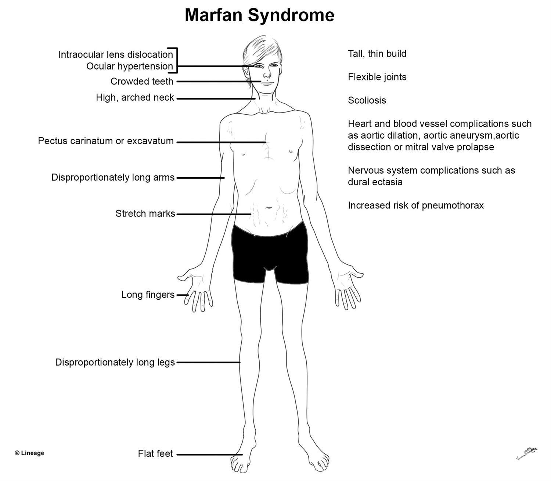 Marfan syndrome: genetics symptoms diagnosis and ...