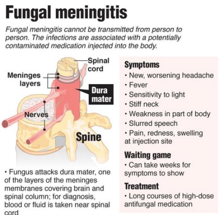Meaning, Types, Causes & Symptoms Of Meningitis – Top Facts About Meningitis 2
