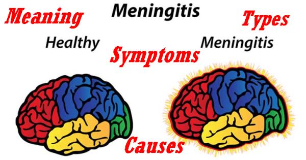 Meaning, Types, Causes & Symptoms Of Meningitis – Top Facts About Meningitis 1