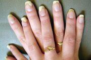 7 symptoms spot nail fungus