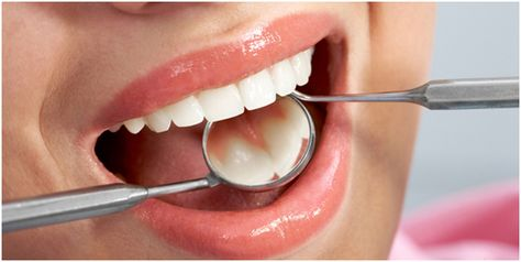 8 Best Home Remedies for Strong Teeth