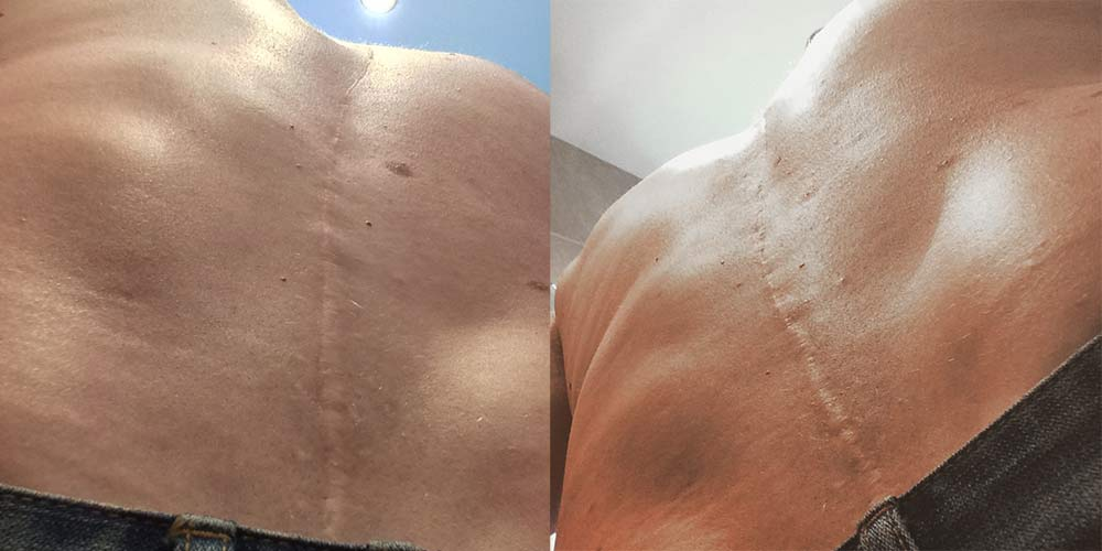 Scoliosis scar
