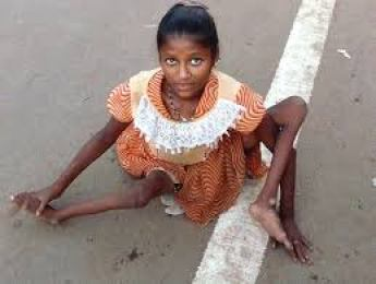 Poliomyelitis has been affecting children worldwide