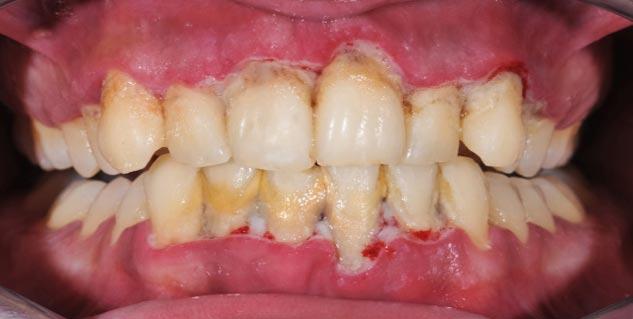 Dental care in Hindi