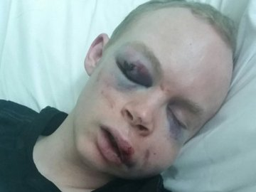 Clubber brutally attacked near Fabric London