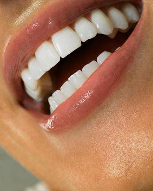 انواع تبييض الاسنان