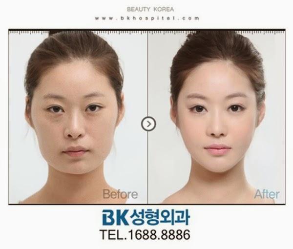 كوريين قبل وبعد عمليات التجميل 12