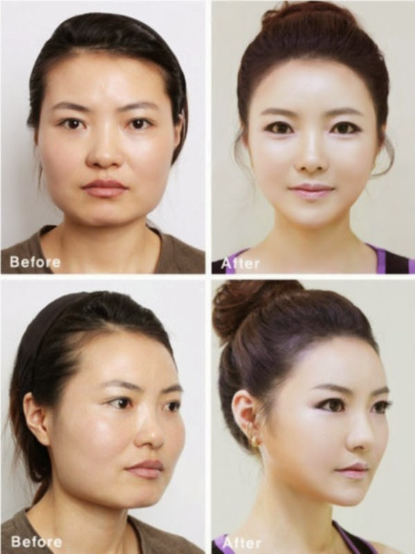 كوريين قبل وبعد عمليات التجميل 15