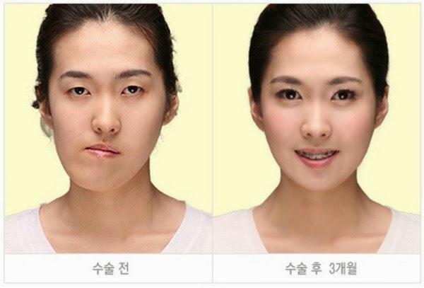 كوريين قبل وبعد عمليات التجميل 18