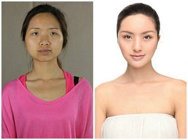 قبل و بعد عمليات التجميل