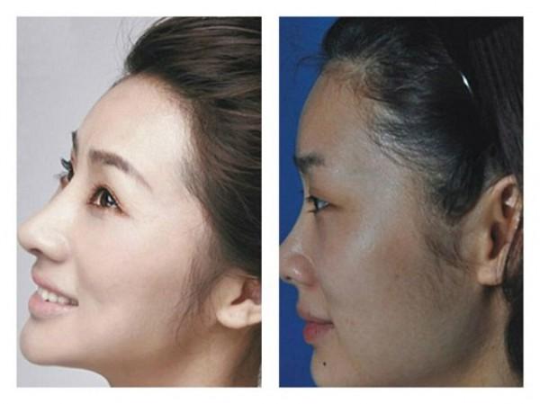 عمليات التجميل محنة تؤرق المطارات الكورية ! (5)