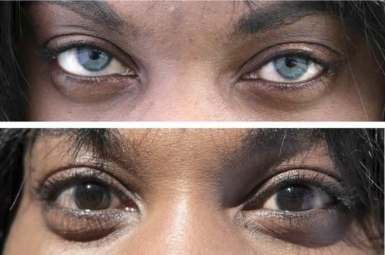 جراحة تجميلية لتغيير لون العيون
