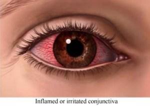 Figuur 7. De conjunctiva is vrijwel doorzichtig. Onder bepaalde omstandigheden kunnen de bloedvaten van de conjunctiva echter uitzetten: bij een allergie, een ontsteking (conjunctivitis) of het te lang dragen van contactlenzen.