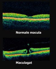 OCT Opname macula