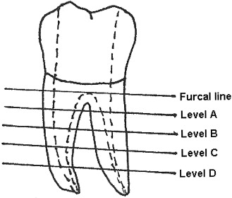 Perforation risks associated with the use of Masserann