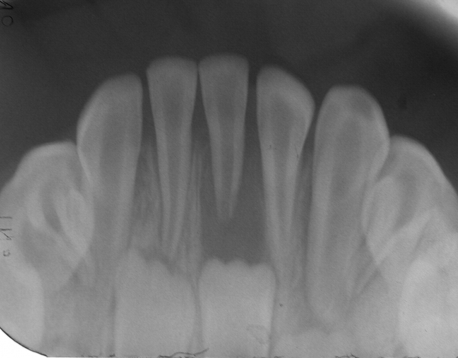 Familial Hypophosphatemic Vitamin D Resistant Rickets Prevention Of Spontaneous Dental Abscesses