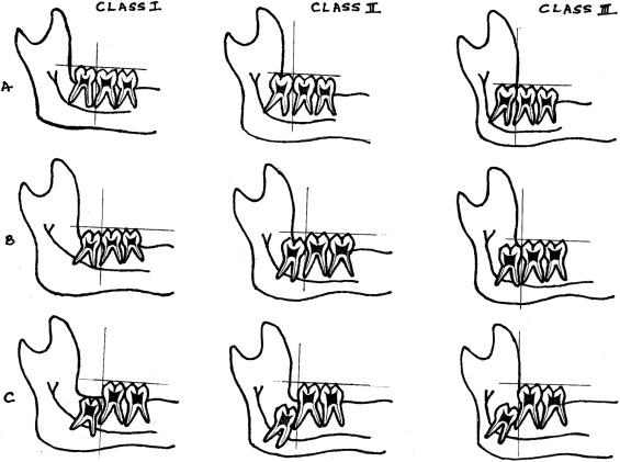 Pattern of mandibular third molar impaction in the Indian