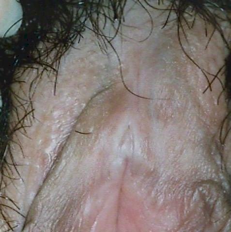 Vulvar Dystrophy