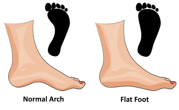 flat feet in the military