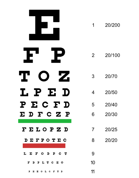 can you join the military with bad eyesight