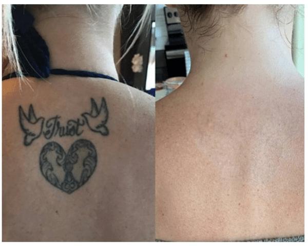 Tattooremovalpen Com