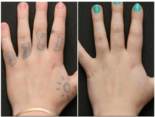 hand tattoo removal before and after