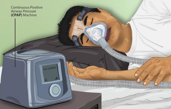 va sleep apnea