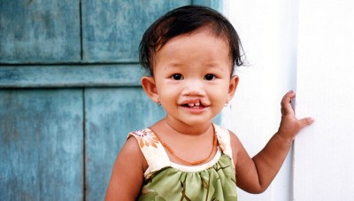 a child with a cleft lip