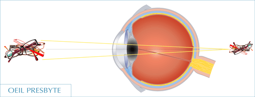 Presbytie : oeil presbyte