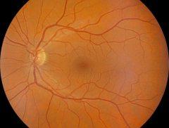 retinographe