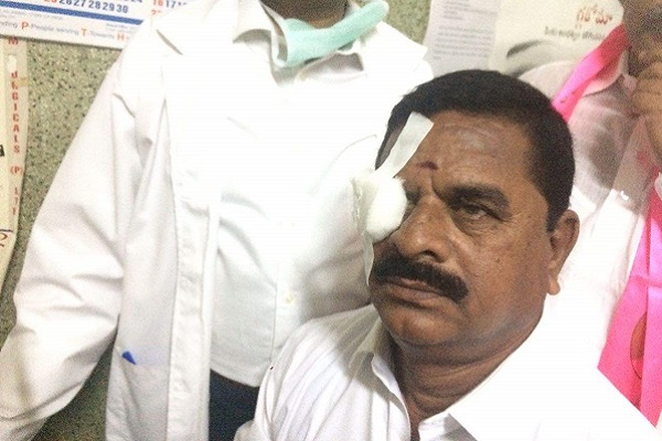 TRS alleges Congress MLAs came to the assembly drunk after one of them injured the Council Chairman