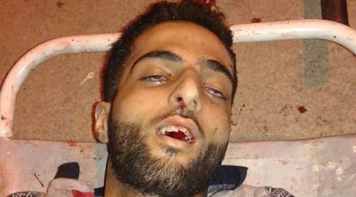 Pakistan and anti-India forces come together to glorify slain terrorist Burhan Wani